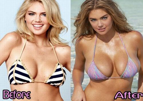 Fake boobs vs real